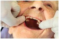 سالمندی و سلامت دهان